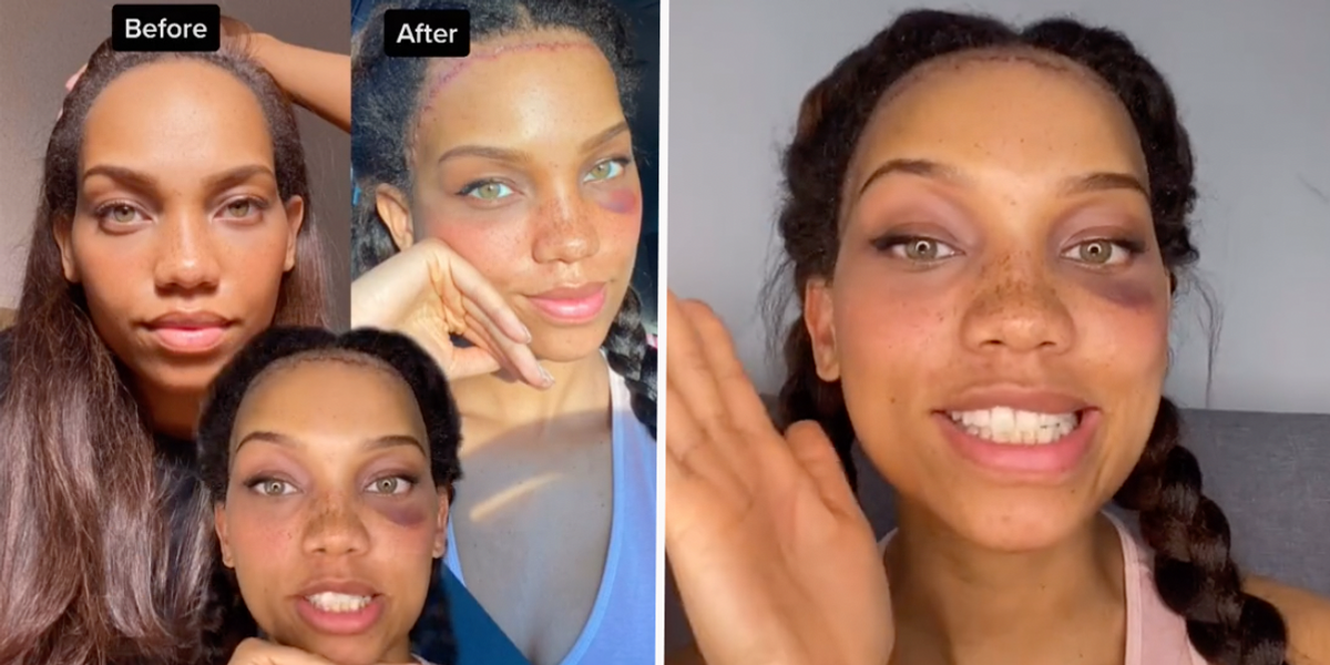 Model Pays $7,000 to Reduce Her Forehead by 3cm