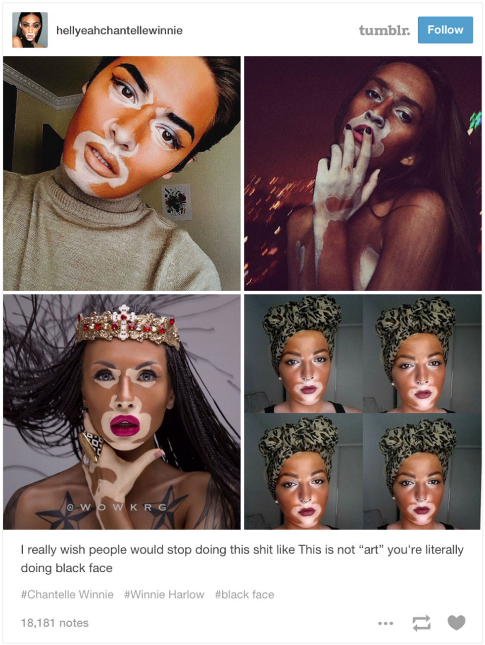 Model Winnie Harlow Defends Her Fans Against Blackface Accusations