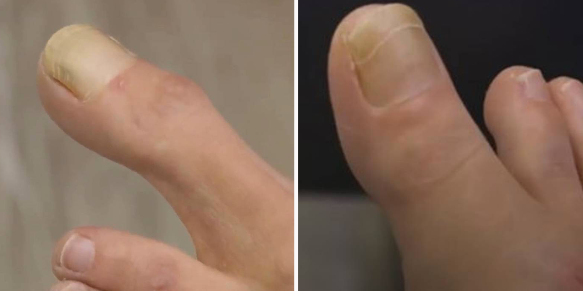Woman Has 'Extremely Rare' Super-Long Big Toe