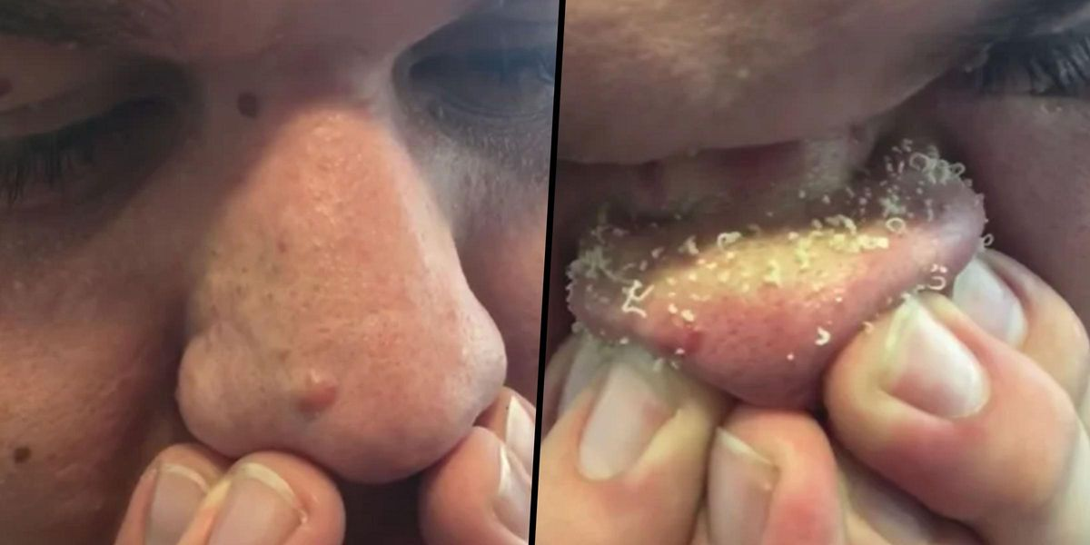 Man's Blackhead Removal Technique Is Freaking Everyone Out