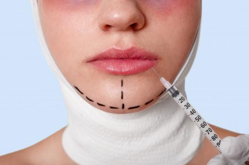 Easy And Safe Way To Get Rid Of The Double Chin