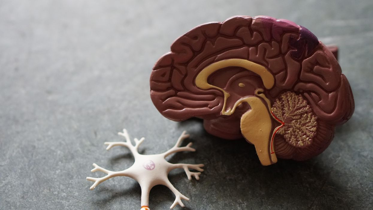 Brain study strengthens link between lithium and suicide
