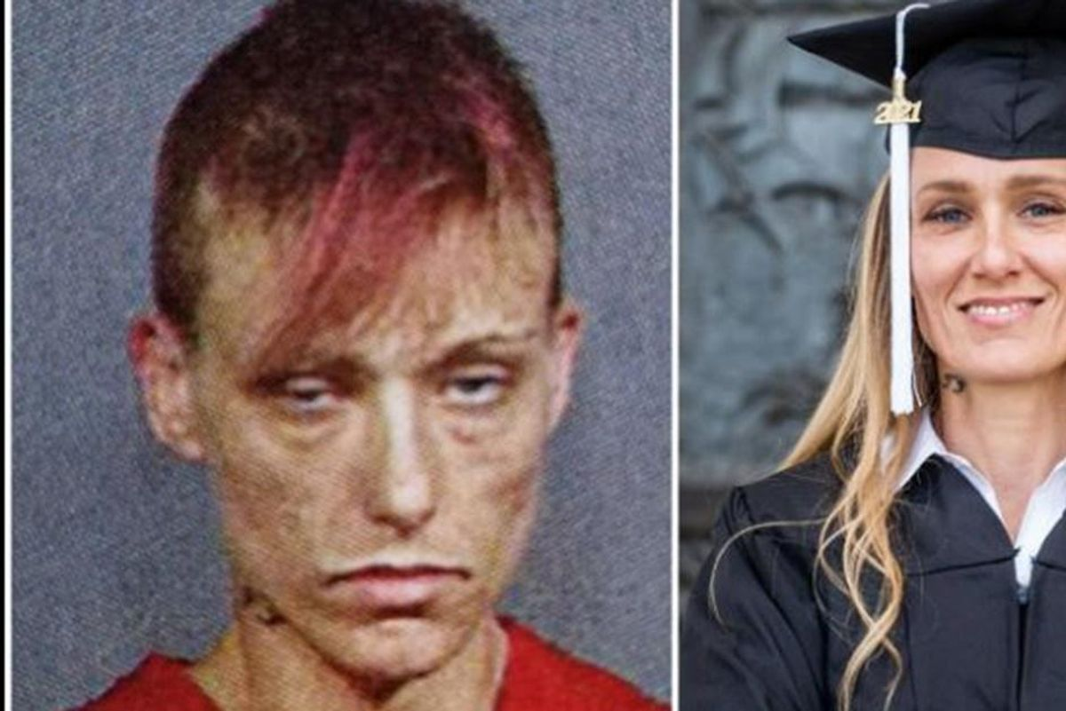 Woman shares startling before-and-after photo to give recovering addicts hope