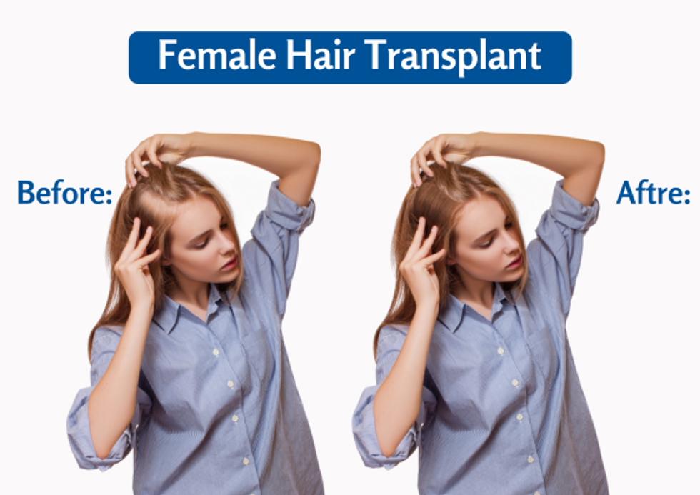 Female Hair transplant Treatment-You must know in 2021