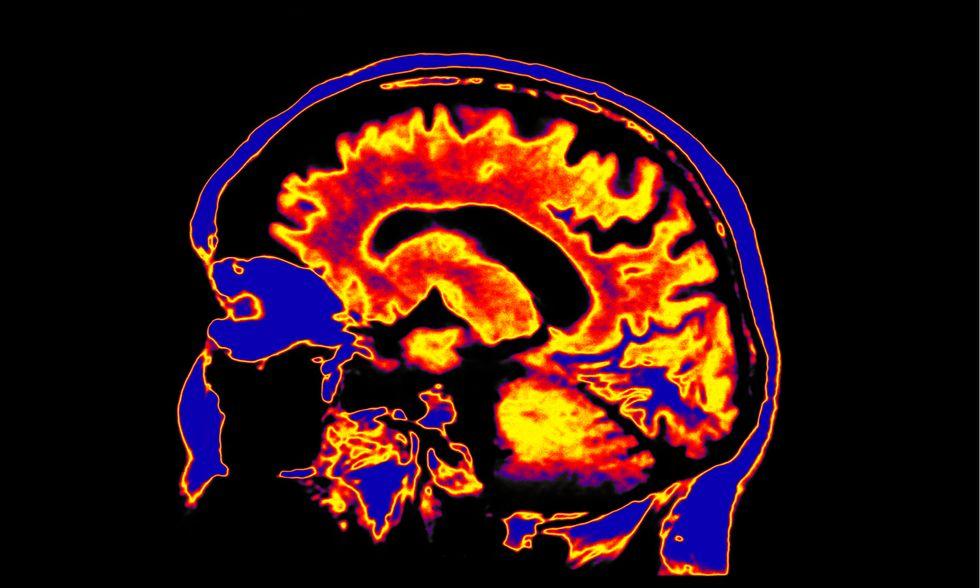Mind and the quantum