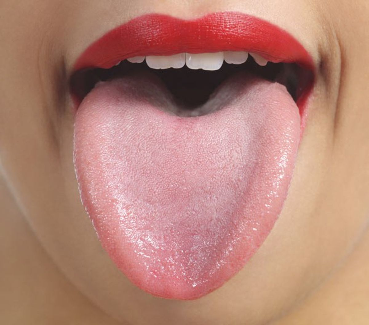 Living With Geographic Tongue