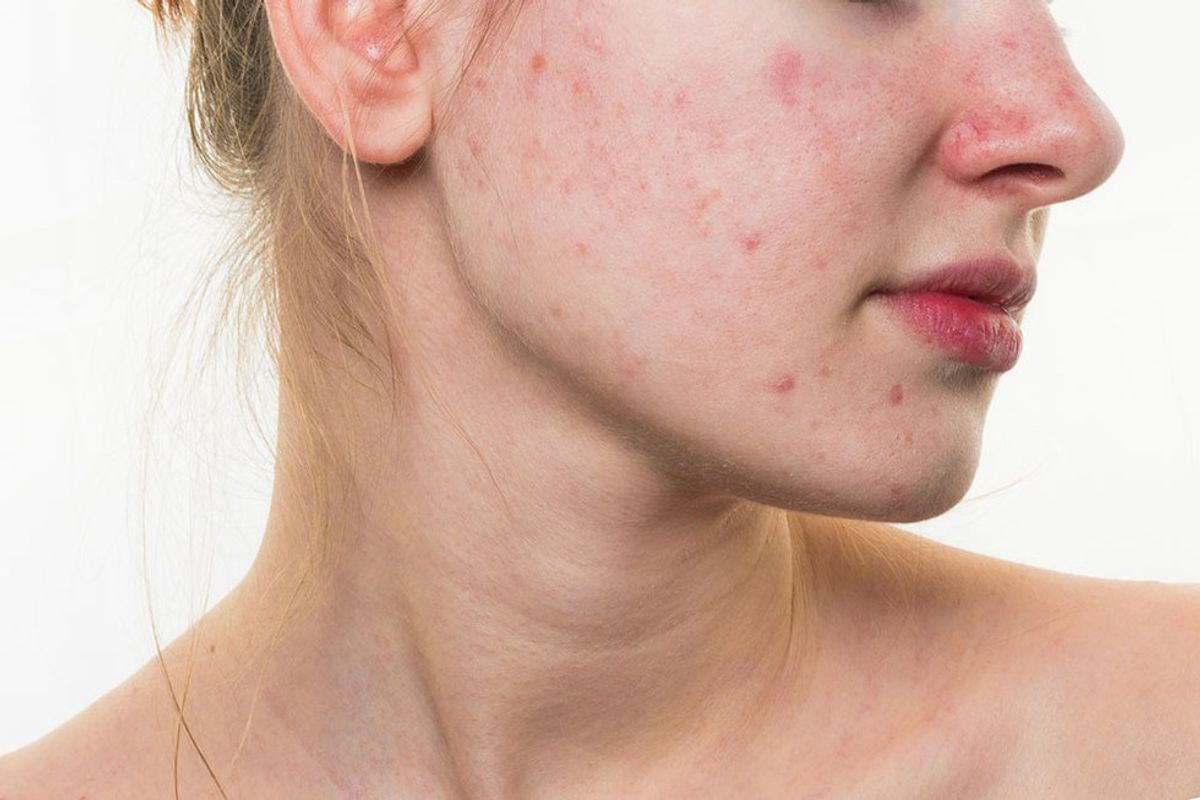 Acne: It Changed Me
