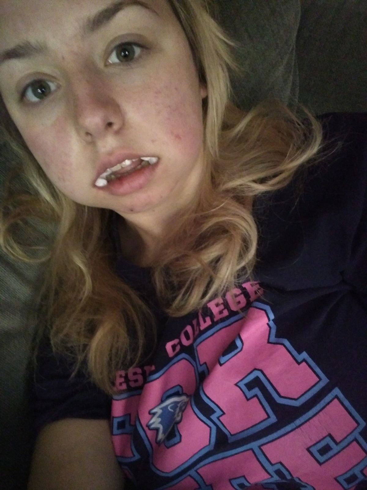 20 Stages of Getting Your Wisdom Teeth Taken Out