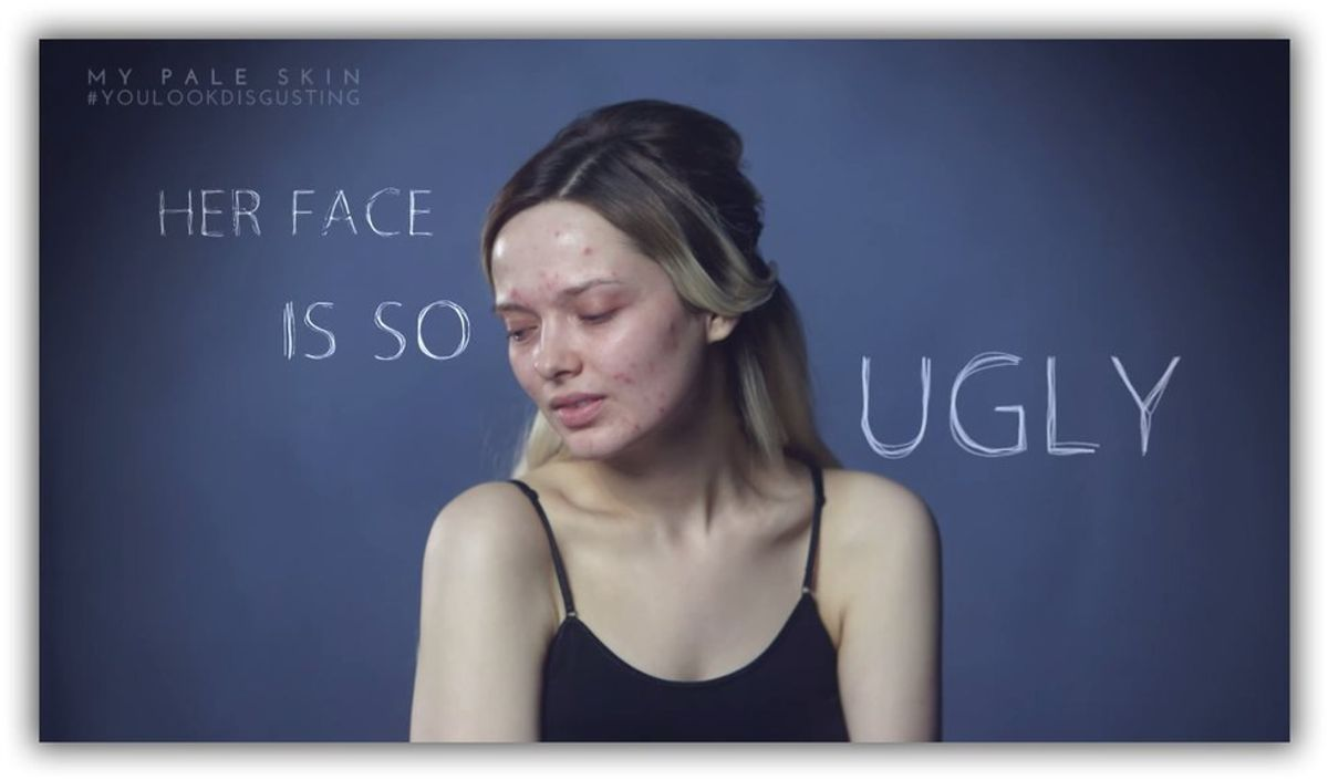 A Cry For Help From The 20 Something Still Struggling With Acne