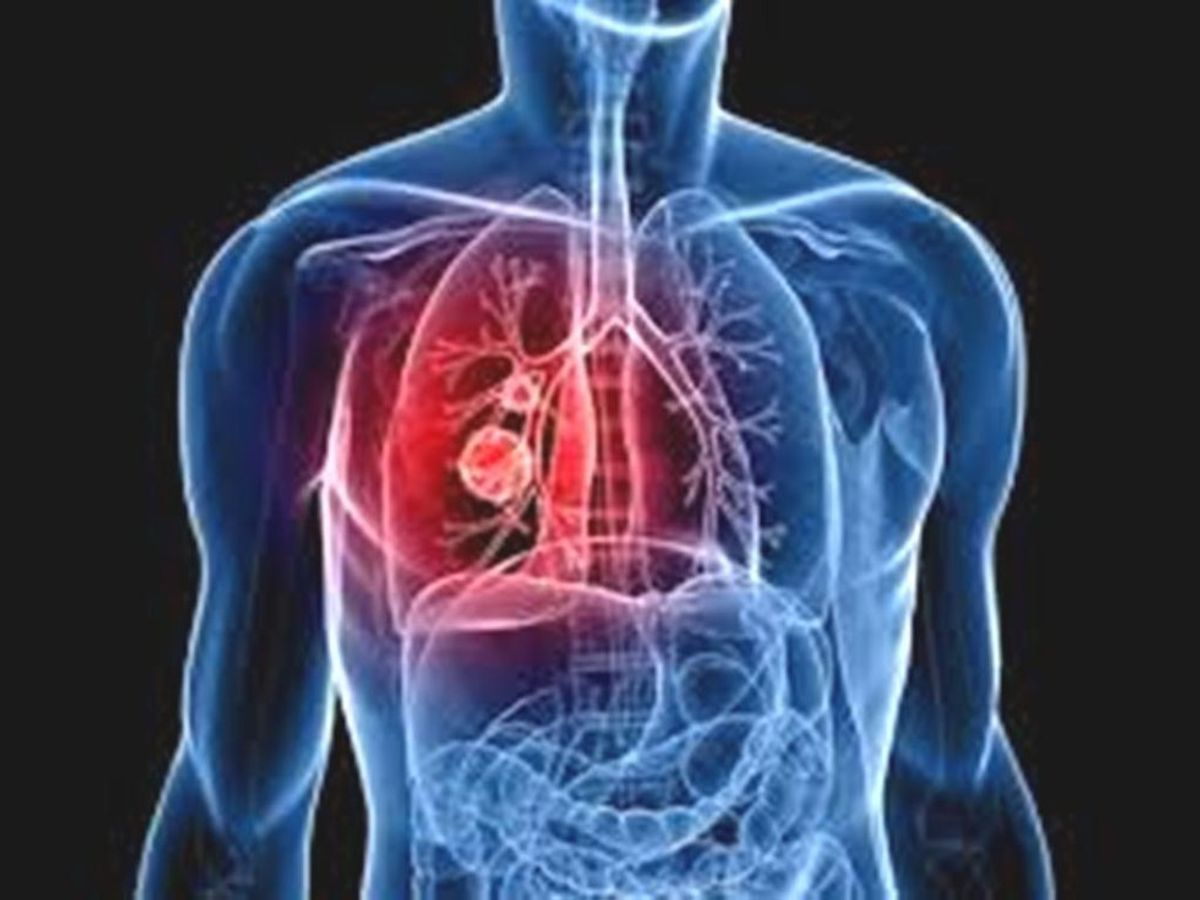 Living with a Pulmonary Embolism