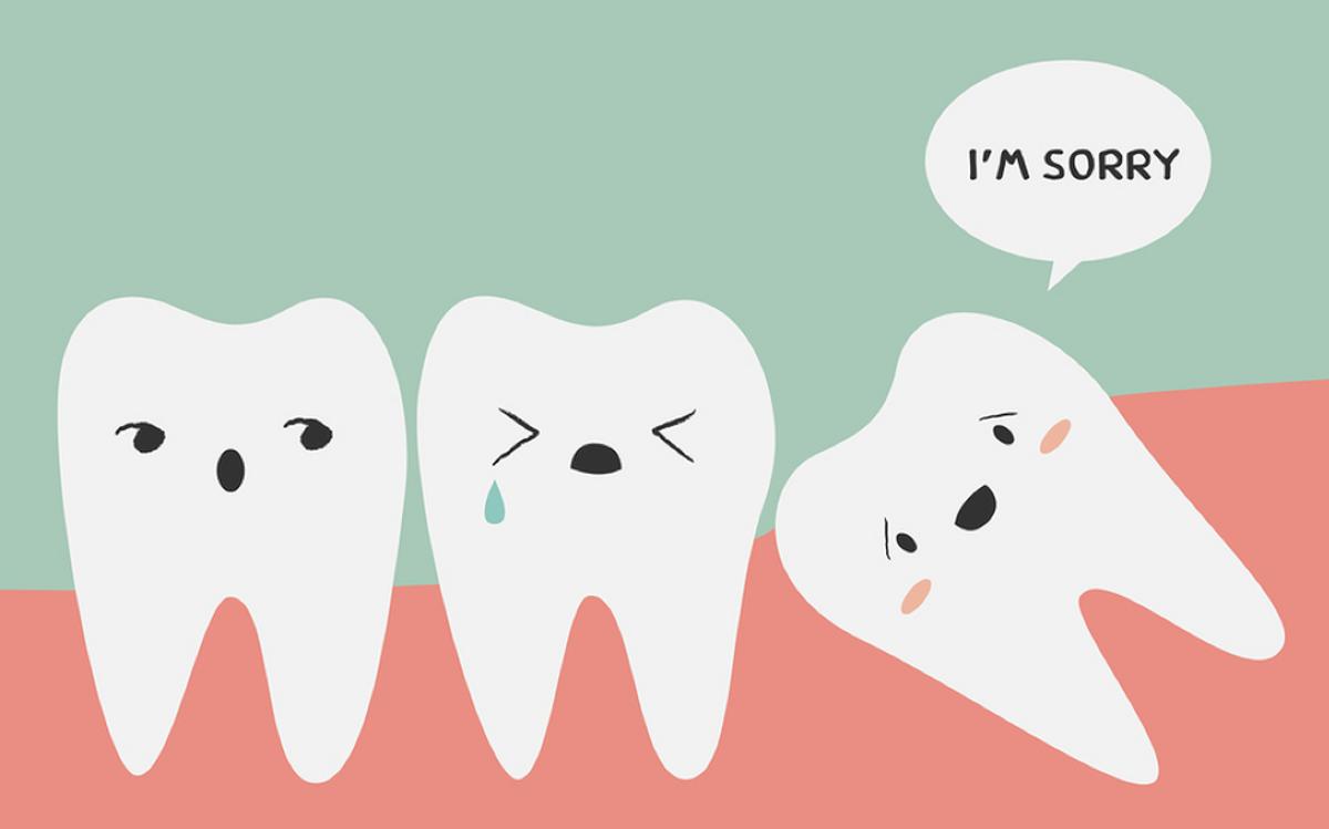 My Wisdom Teeth Experience