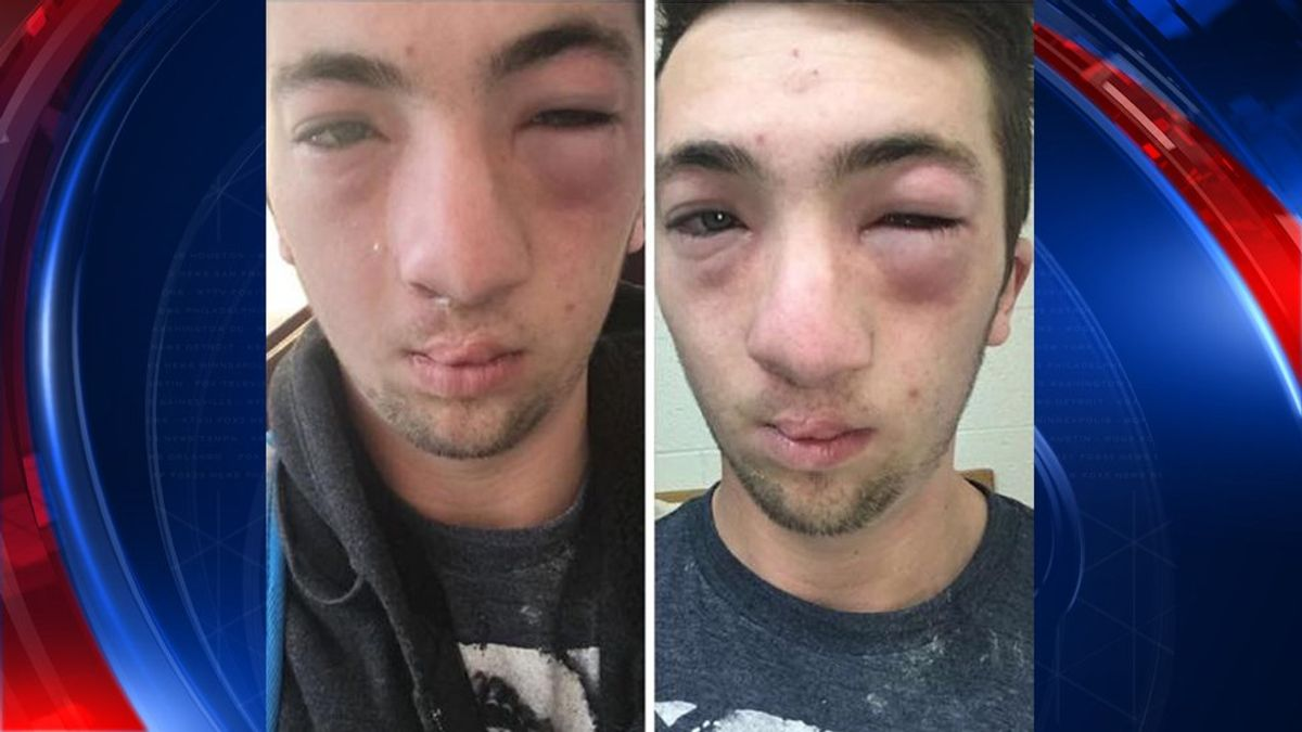 Don't Use Someone's Allergy Against Them