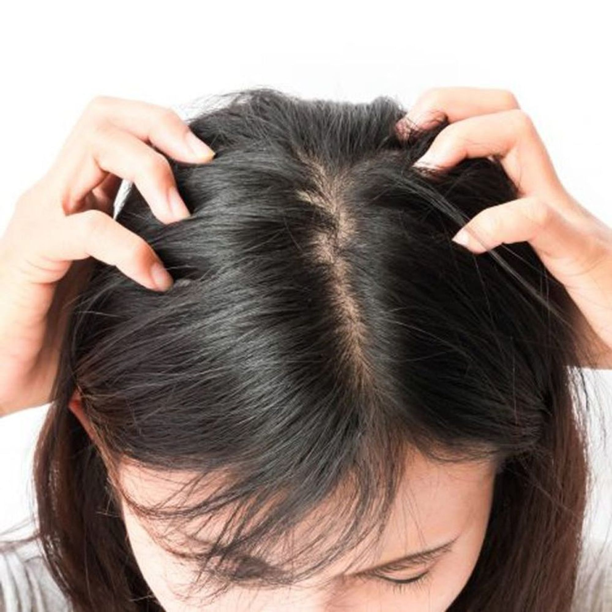How To Treat Scalp Zits According To Experts Brit Co
